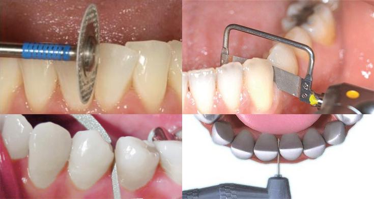 stripping-dental