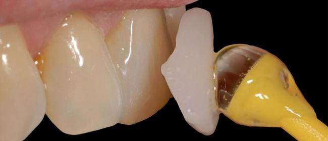 uso de antioxidantes en la odontologia adhesiva