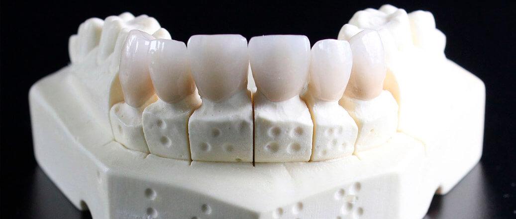 laboratorio dental