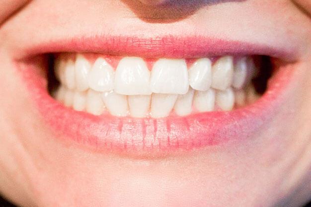 sonda periodontal