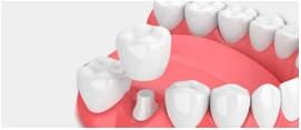 Coronas Dentales | DentPro