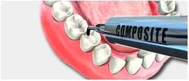 Composites Dentales | DentPro