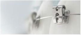 Brackets de autoligado | DentPro