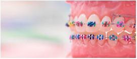 Ortodoncia | DentPro