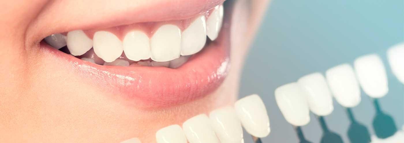 Resinas dentales, el éxito de tus restauraciones