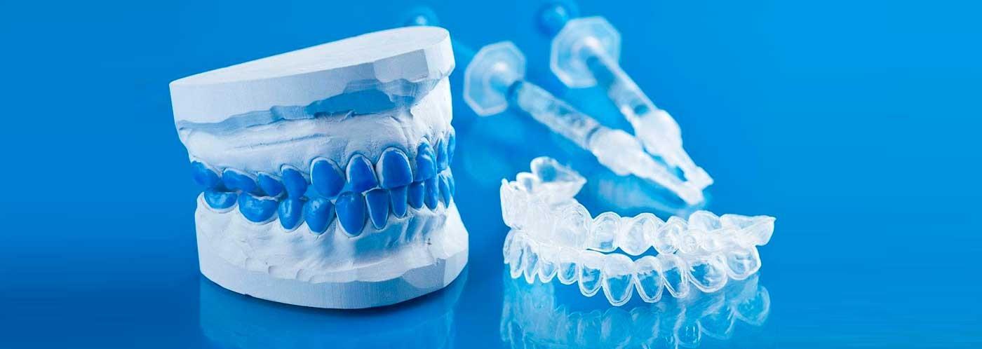 ¿Qué productos usar para un blanqueamiento dental?